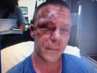 Former Marine Brutally Beaten While Defending Teen from Bullies